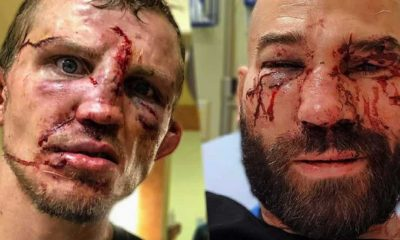 Jason Knight and Artem Lobov were a picture after their fight.